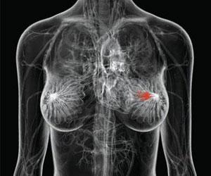 Mamografia con contraste - DIagnostico por imagen - CPM Tejerina