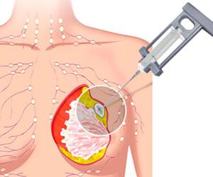 PAAF - Radiologia Intervencionista - CPM Tejerina