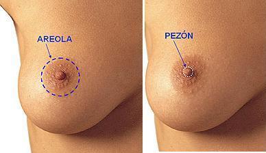 Esquema Disminucion de tamaño de areola - Cirugia de mama - Cpm Tejerina