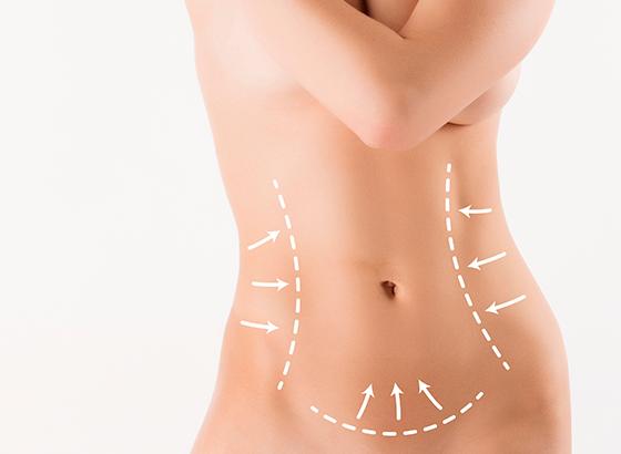 Lipoescultura corporal - cirugia corporal e intima - cpm tejerina
