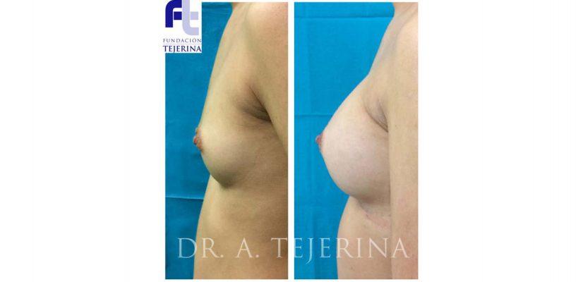 Asimetria Mamaria Caso 1 - Cirugia de Mama - CPM Tejerina