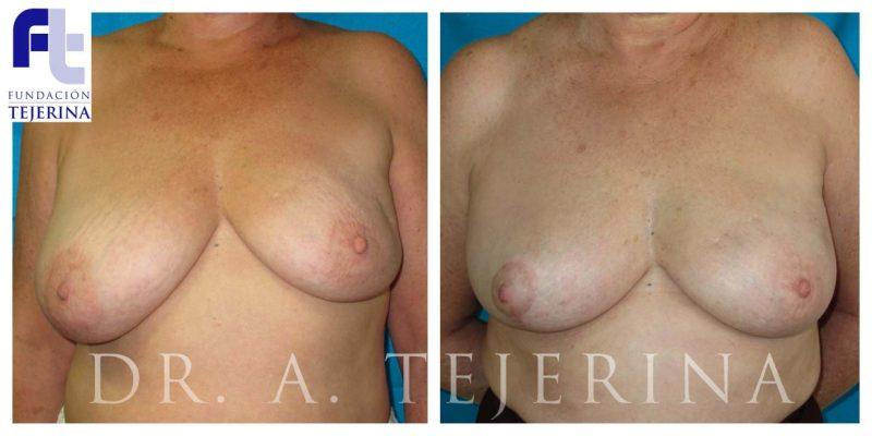 Caso 2 Cirugía oncoplástica Cpm Tejerina
