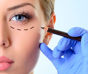 Blefaroplastia Párpados - Cirugia Facial - Cpm Tejerina