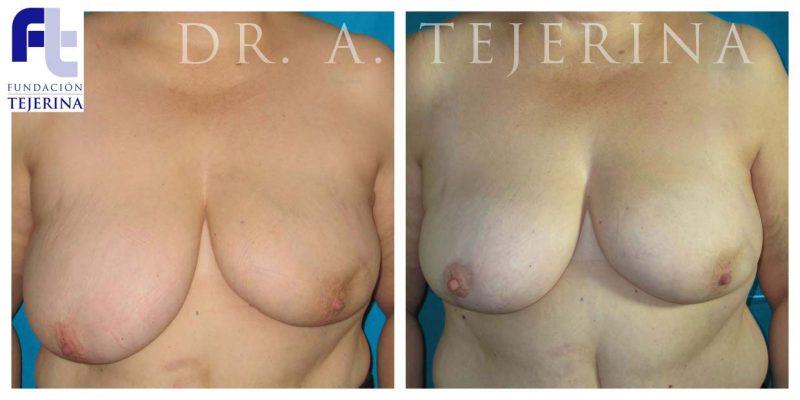 Caso 1 Cirugía oncoplástica Cpm Tejerina