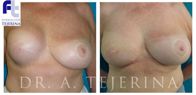 Reconstruccion Secundaria Caso 1 - Prevencion del cancer de mama - Cpm Tejerina