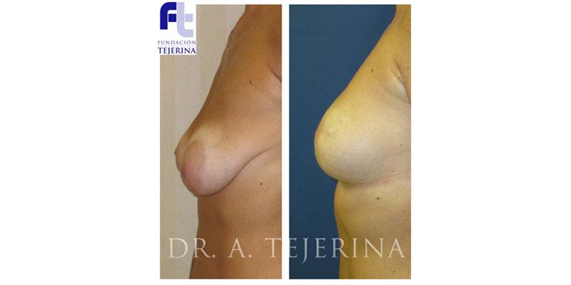 Cirugía de Reducción de Riesgo - Unidad de Prevencion del Cancer de Mama - Cpm Tejerina