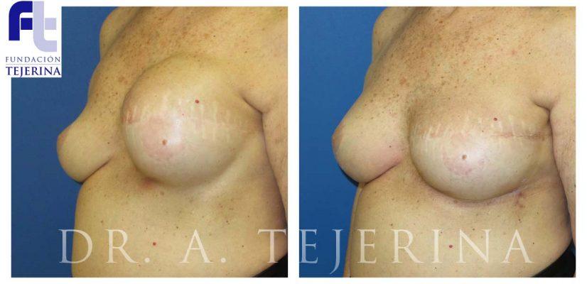 Reconstruccion Secundaria Caso 2 - Prevencion del cancer de mama - Cpm Tejerina