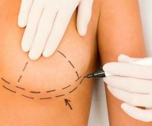 Cirugia Oncologica de mama - Tratamiento del cancer de mama - CPM Tejerina