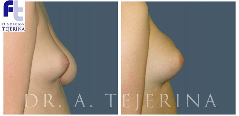 Mama Tuberosa - Cirugía de mama - Cpm Tejerina