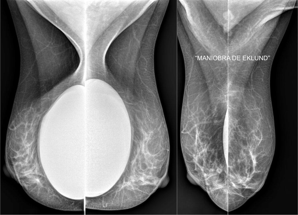 Maniobra Eklund - Recambio de implantes - CPM Tejerina