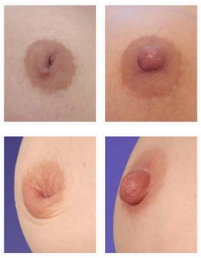 Pezon Invertido - Cirugia de Mama - Cpm Tejerina