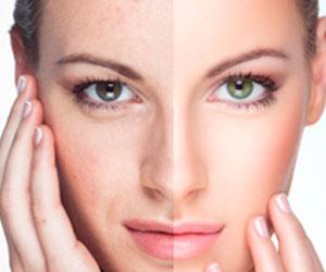 Rejuvenecimiento Facial - Cirugia Facial - Cpm Tejerina