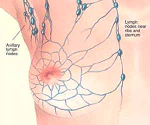Linfogammagrafia Ganglio Centinela - Diagnostico por imagen molecular - CPM Tejerina